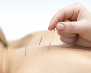 Dry Needling, physical therapy
